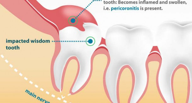 How much does it cost to get wisdom teeth removed without ...
