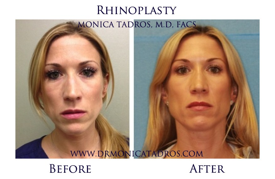 does insurance cover rhinoplasty photo - 1