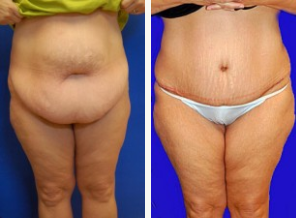 does insurance cover tummy tuck photo - 1