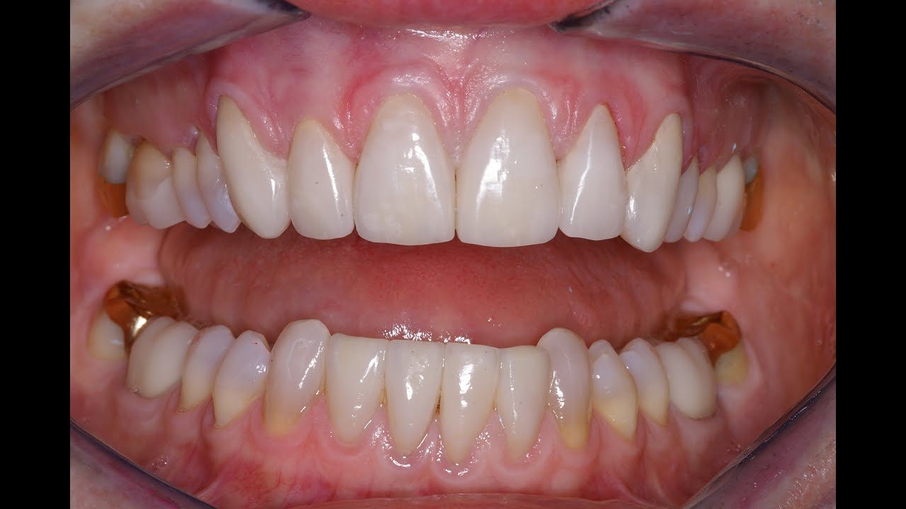 how much do veneers cost with insurance photo - 1