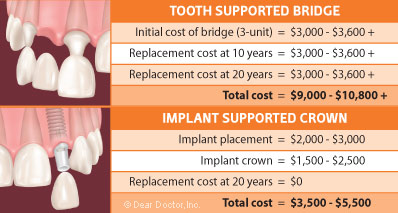how much does a dental bridge cost with insurance photo - 1