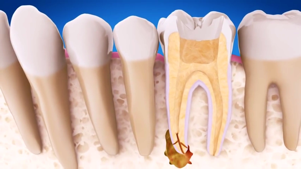 root canal cost with insurance photo - 1