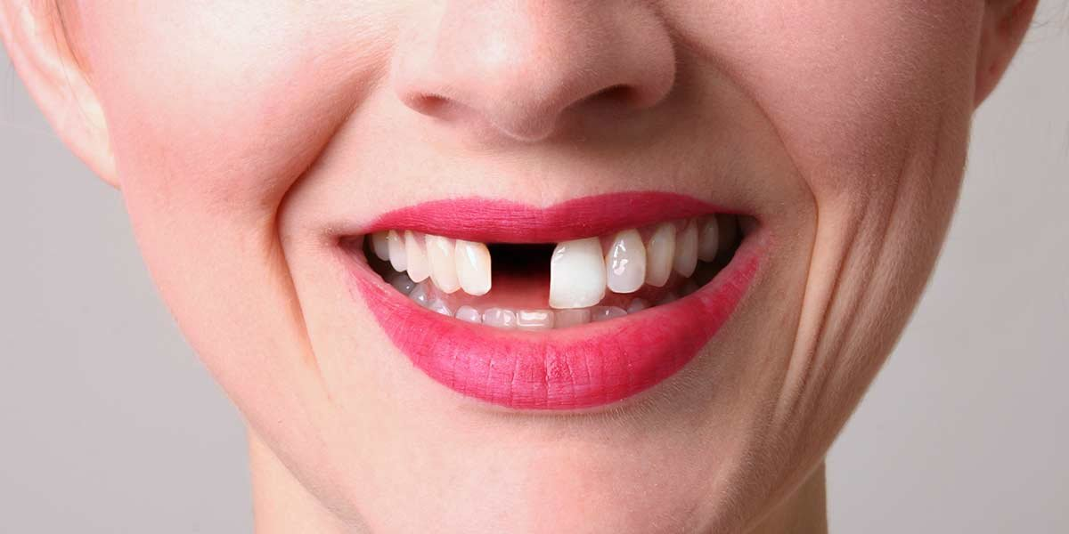 wisdom teeth removal cost with insurance photo - 1